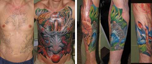 Как обезболивают кожу перед татуировкой